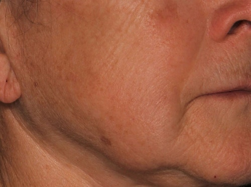 Sofwave Before & After - After 3 month Sofwave Wrinkle Reduction 3
