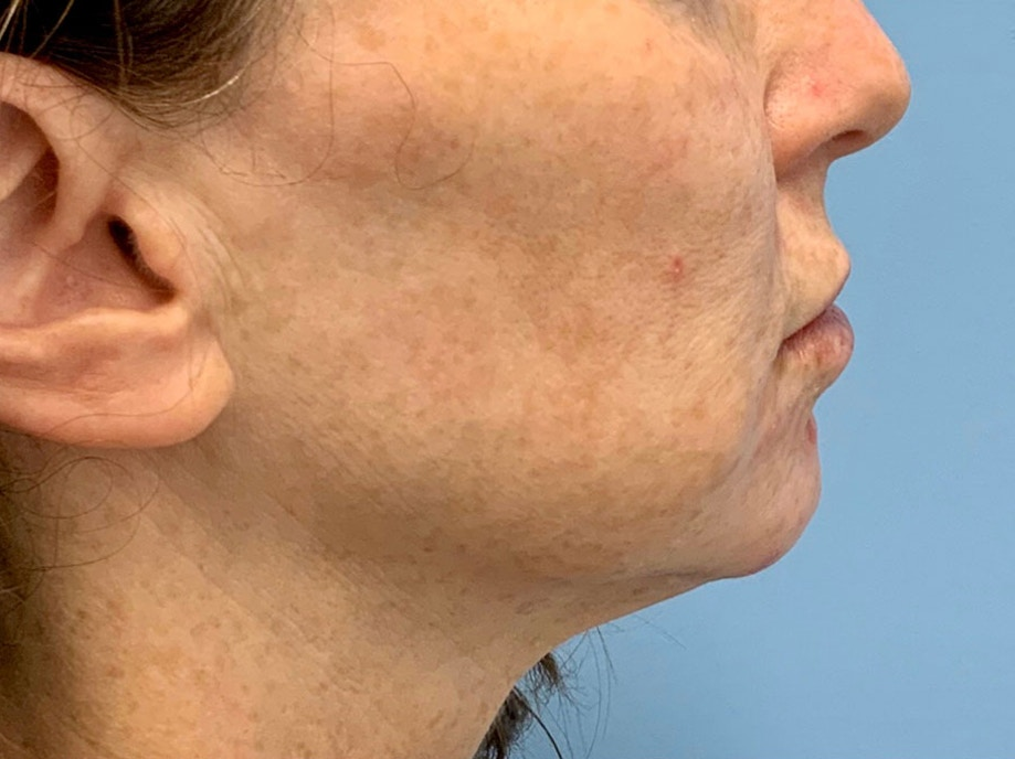Sofwave Before & After - Before Sofwave wrinkle reduction