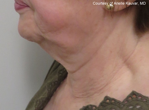 Before & After Sofwave - After Treatment