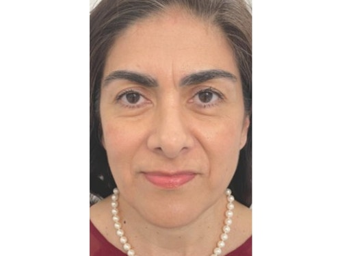 Sofwave Before & After - After 1 month Sofwave Wrinkle Reduction 4