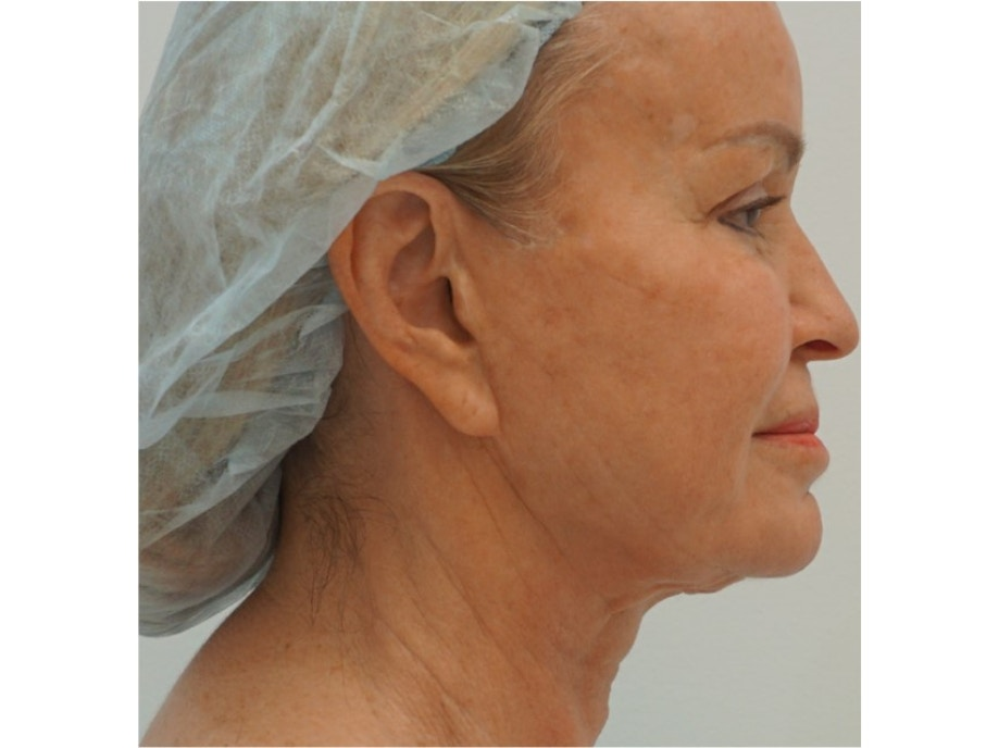 Sofwave Before & After - Before Sofwave wrinkle reduction 5
