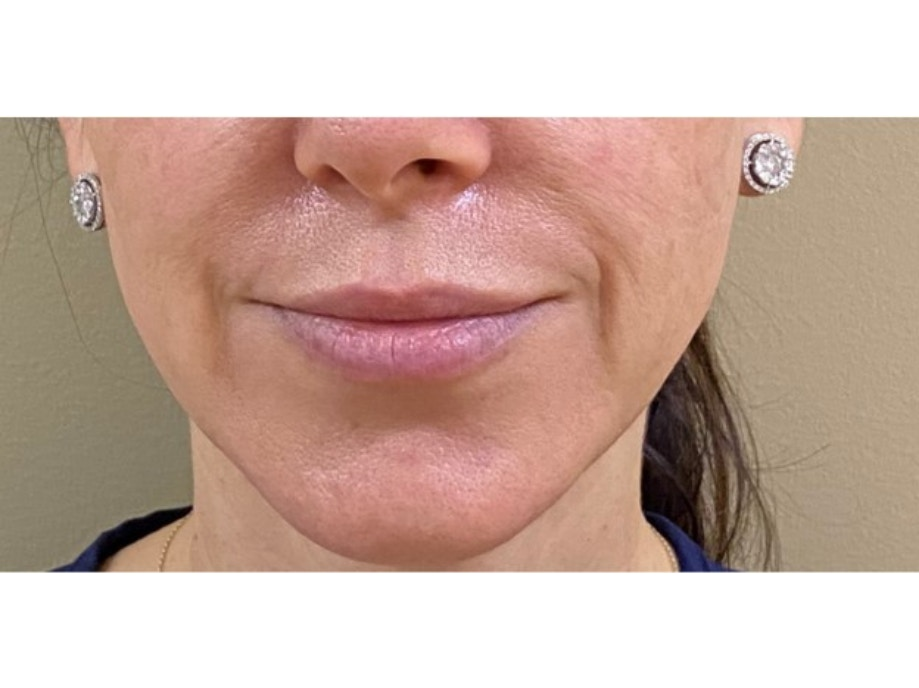 Sofwave Before & After - Before Sofwave Wrinkle Reduction 7