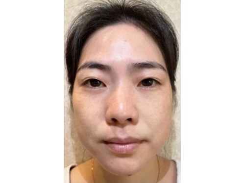 Sofwave Before & After - Before Sofwave wrinkle reduction 3