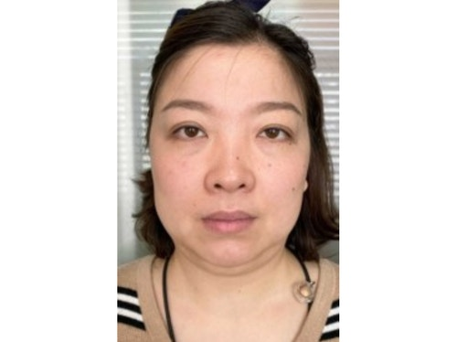 Sofwave Before & After - Before Sofwave wrinkle reduction 4