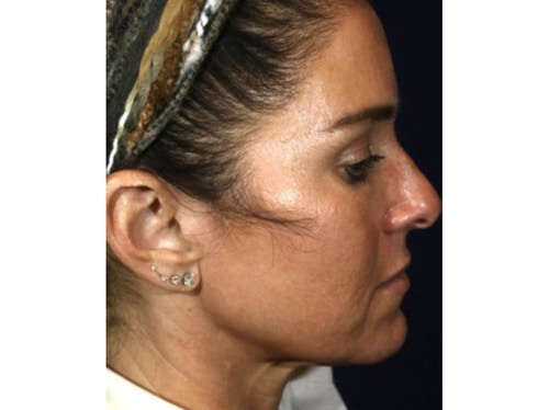 Sofwave Before & After - After 2 month Sofwave Wrinkle Reduction 4