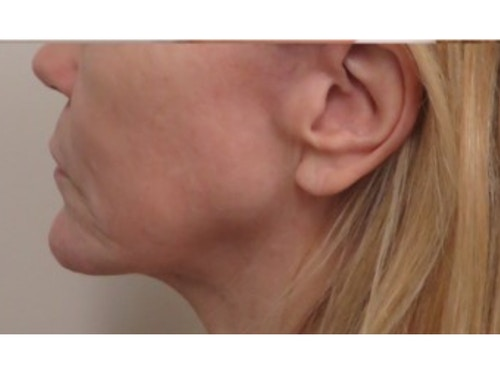Sofwave Before & After - Before Sofwave Wrinkle Reduction 13