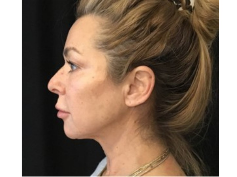 Sofwave Before & After - After 2 month Sofwave Wrinkle Reduction 8