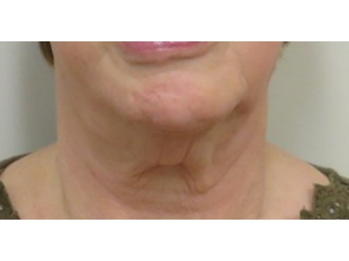 Sofwave Before & After - After 2 month Sofwave Wrinkle Reduction 10