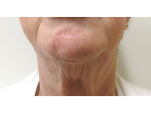 Sofwave Before & After - before 1 Courtesy of Arisa Ortiz MD 2