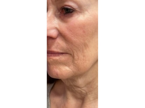 Sofwave Before & After - before Courtesy Mara Weinstein MD