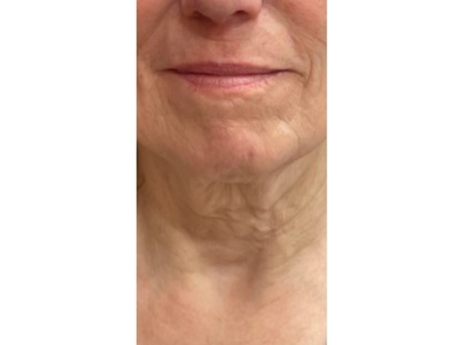 Sofwave Before & After - before Courtesy Mara Weinstein MD 1