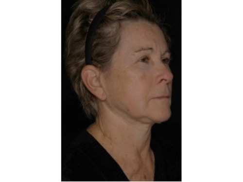 Sofwave Before & After - After 3 month Sofwave Wrinkle Reduction 2