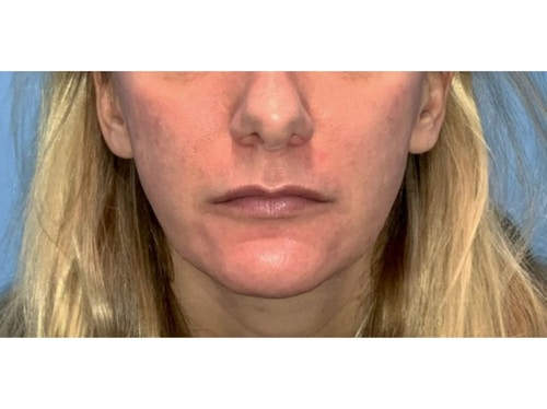 Sofwave Before & After - After 3 month Sofwave Wrinkle Reduction 6