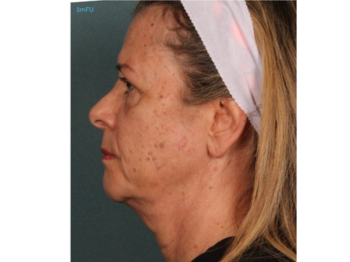 Sofwave Before & After - After 3 month Sofwave Wrinkle Reduction 9