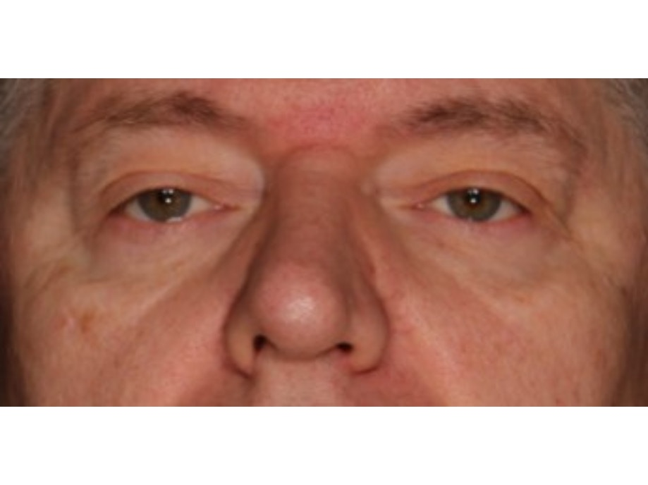 Sofwave Before & After - After 3 month Sofwave Wrinkle Reduction 11